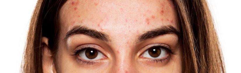 Аллергия при месячных: причины, признаки, лечение