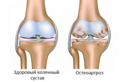 Остеоартроз при климаксе