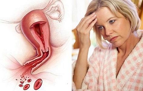 Эндометриоз при климаксе