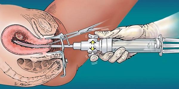 Хирургическая терапия при гиперплазии эндометрия в менопаузе