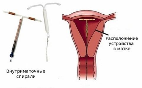 Преимущества контрацептива Мирена