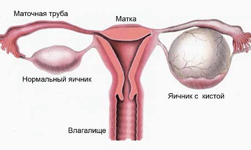 Препарат Дюфастон при кисте яичника