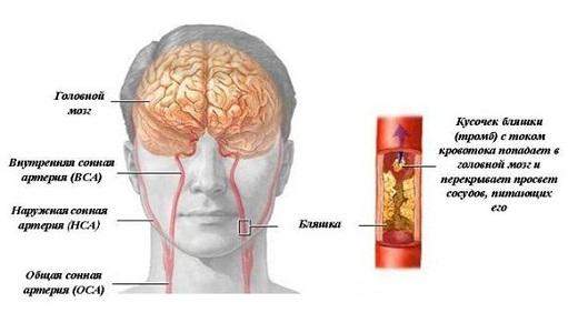 Риск развития тромбоза при приеме Новаринг