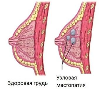 Причины боли груди перед месячными