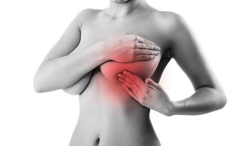 Болят молочные железы перед месячными