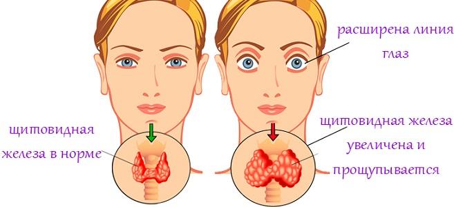 Аменорея при гипертиреозе у женщин