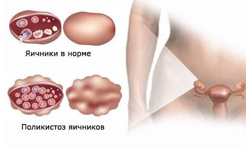 Апоплексия при поликистозе яичника
