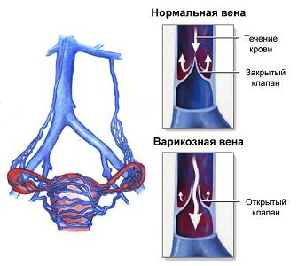 Апоплексия при варикозном расширении вен