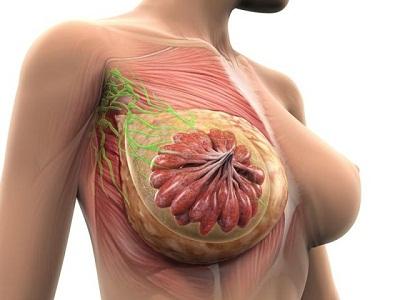 Болит грудь во время менструации