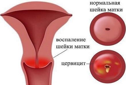 Осложнения после эктропиона шейки матки
