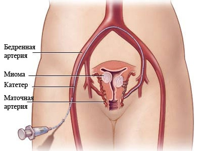 Эмболизация маточных артерий при миоме во время беременности