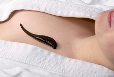 Гирудотерапия при лечении симптомов климакса