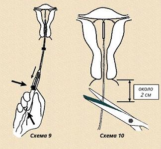 Инструкция по применению спирали Юнона