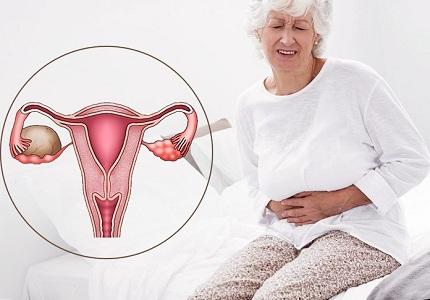 Киста яичника при климаксе: операция, таблетки, народная медицина