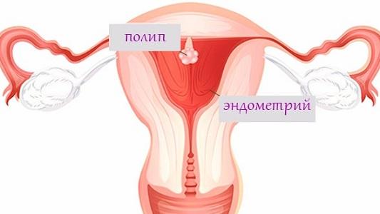 Кровотечение при климаксе при наличии полипа эндометрия