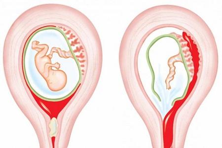 Месячные у женщин после замершей беременности