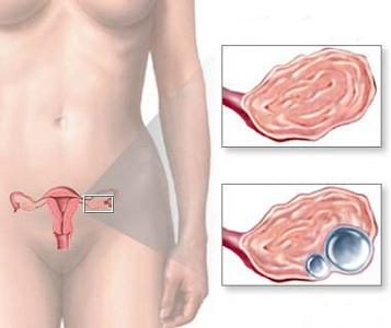 Многокамерная (мультилокулярная) киста левого и правого яичника — как лечить?
