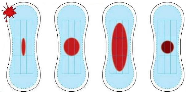 Отличия нормальных месячных от маточного кровотечения