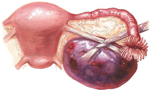 Причины апоплексии яичников