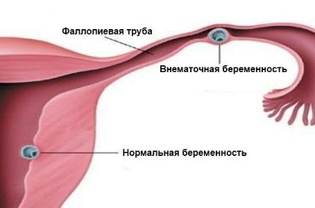 Причины метроррагии