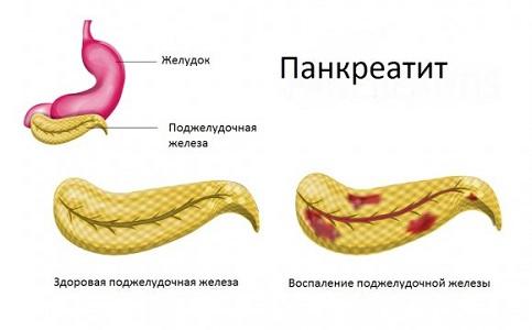 Противопоказания контрацептива Клайра