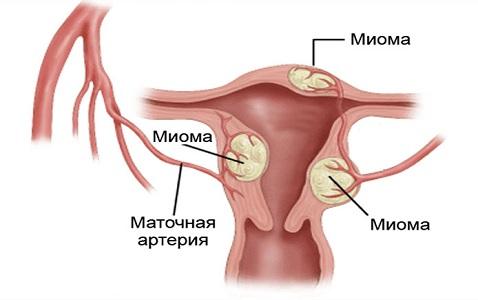 Сгустки крови при патологиях