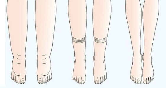 Симптомы при увеличении веса перед месячными