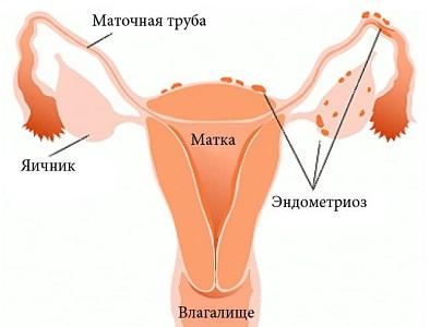 Слизистые месячные при эндометриозе