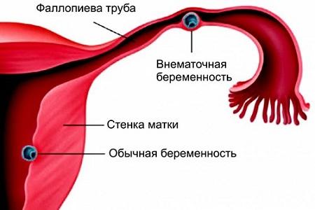 Внематочная беременность после Постинора