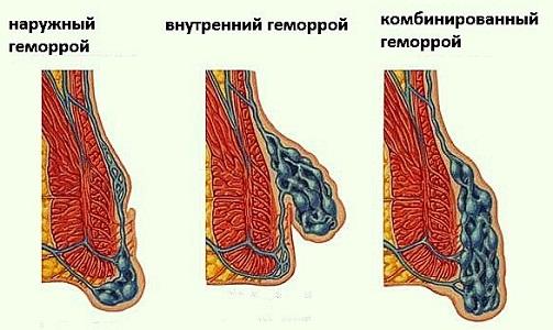 Воспаление геморроя при месячных