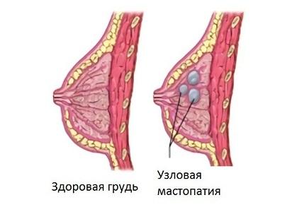 Выделения из груди при мастопатии