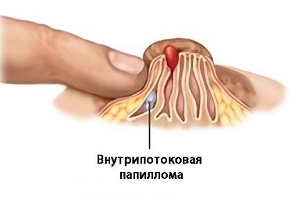 Выделения из груди при внутрипотоковой папилломе