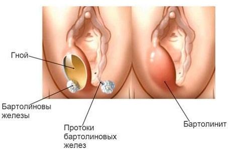 Бартолинит у женщин
