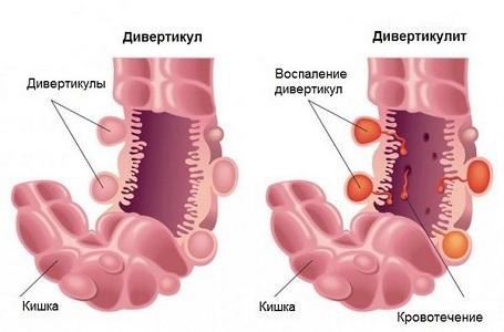 Болит бок перед месячными при дивертикулите