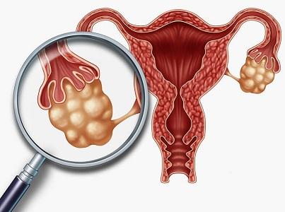 Болит низ живота после месячных при поликистозе яичника