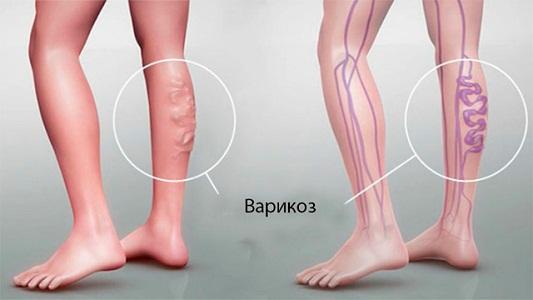 Болят ноги перед месячными при варикозе
