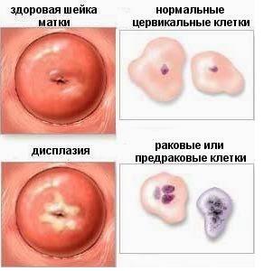 Как лечить дисплазию шейки матки медикаментозно и оперативно