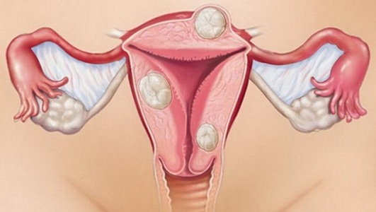 Фибромиома матки у женщин