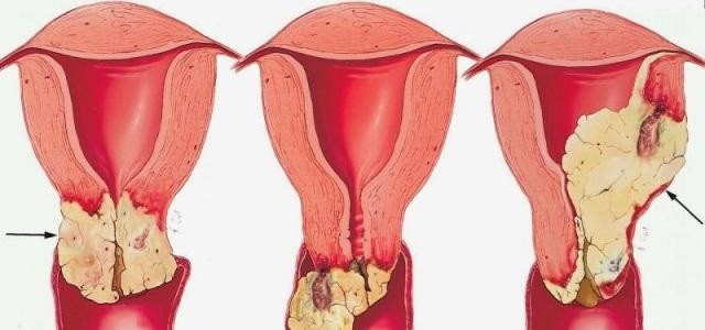 Формы аденокарциномы матки