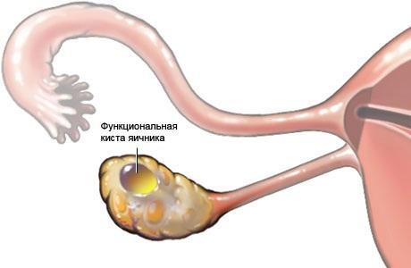 Функциональная киста яичника во время месячных