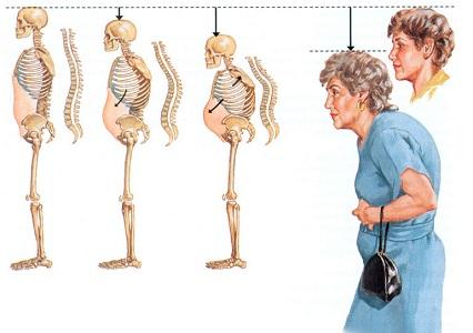 Изменения костей при климаксе