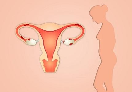 Классификация эндометрита у женщин