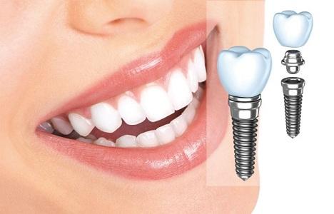 Лечение и протезирование зубов при месячных