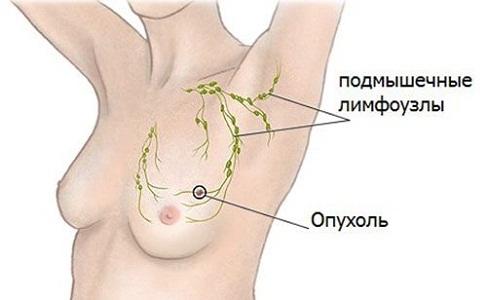 Лимфатические узлы в подмышках перед месячными