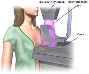 Облучение при маммографии