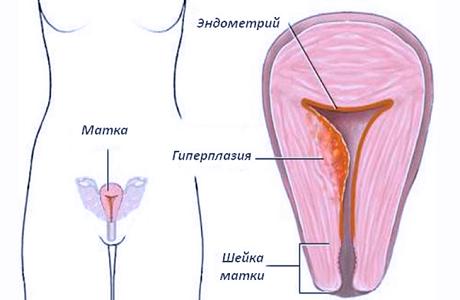 Месячные при гиперплазии эндометрия