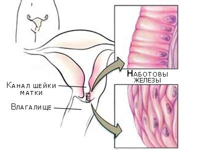 Наботовы кисты шейки матки у женщин