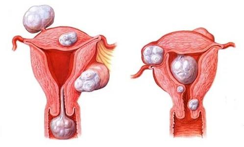 Оперативное лечение миомы матки