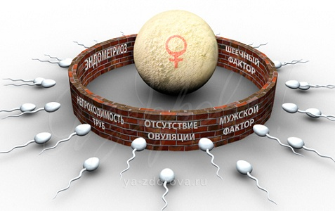 Осложнения аденомиоза