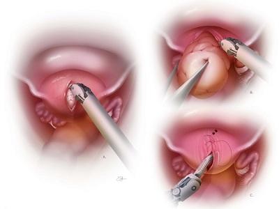 Показания к операции на миоме матки
